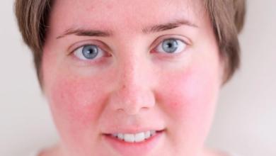 كيف تتخلصين من الاحمرار في الوجه