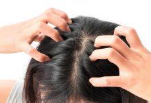 علاج حكة الرأس بطرق منزلية