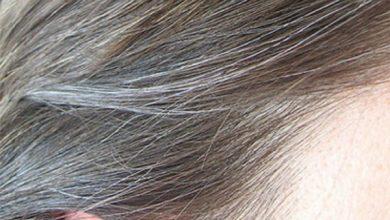 علاج الشعر الابيض بالاعشاب