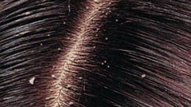 حلول فعالة لعلاج قشرة الشعر الموسمية