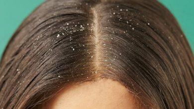 التخلص من قشرة الشعر في 5 نصائح فقط