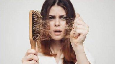 نصائح للتخلص من تساقط الشعر نهائيًا