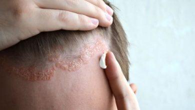 فوائد لجل الصبار في عالج الصدفية وقشرة الشعر