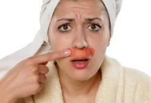 فوائد وأضرار ازالة الشعر بالليزر