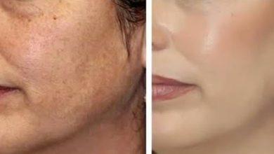 5 ماسكات لعلاج تصبغات الوجه وازالة البقع الداكنة
