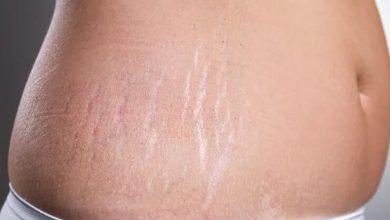 5 وصفات طبيعية لتقليل علامات تمدد الجلد