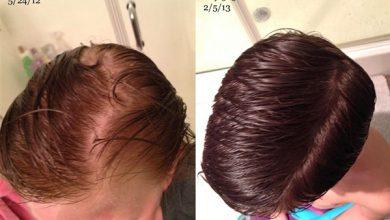 وصفات زيت الخروع لتقوية ونعومة الشعر