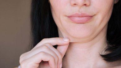 طرق التخلص من ترهلات الجلد بعد خسارة الوزن