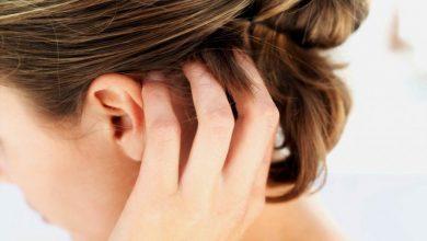 أسباب حبوب فروة الرأس وعلاجها