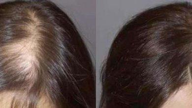 وصفة للتخلص من الصلع وتنبيت الشعر