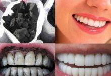 طريقة تبييض الأسنان بالفحم