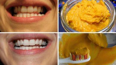 طريقة لتبييض الأسنان بالكركم في يوم واحد