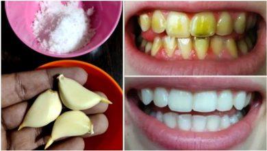 تبييض الأسنان في دقيقتين فقط