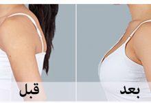 وصفة لشد الصدر بدون جراحة وبمكون واحد فقط