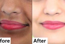 وصفة رائعة للتخلص من السواد حول الفم