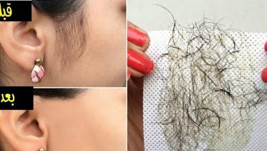 وصفة طبيعية لإزالة شعر الوجه بدون ألم