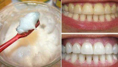 وصفة طبيعية للتخلص من إصفرار الأسنان وتبييضها