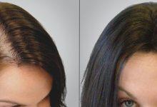 ماسك حليب جوز الهند لتكثيف وتطويل الشعر