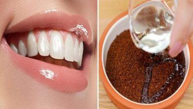 الوصفة المثالية لتبييض الأسنان ونظافتها