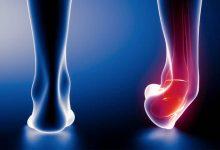 علاج ألم مفصل القدم