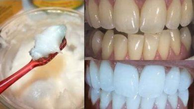 وصفة سحرية و فعالة لتبييض الأسنان بياضا ناصعا