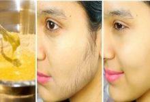 الوصفة المثالية للتخلص من الشعر الزائد من الجسم