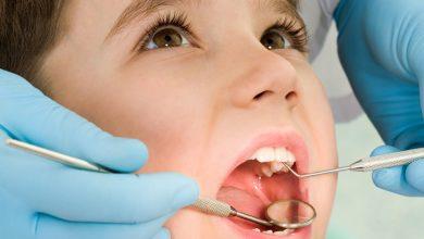 علاج خراج الأسنان عند الأطفال