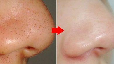 وصفة لازالة الرؤوس السوداء والحصول على بشرة ناعمة