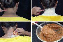 وصفة طبيعية لإزالة تصبغات البشرة والبقع الداكنة