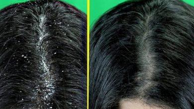 الوصفة التي تخلصك من قشرة الشعر ويقضي عليها بشكل نهائي