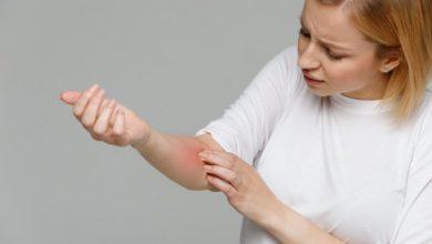 طرق علاج طبيعية بسيطة للتخلص من حبوب الحساسية