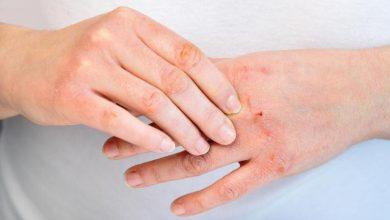مرض الأكزيما وكيفية التعامل معه