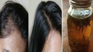 أحسن وصفة لعلاج تساقط الشعر