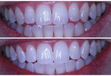 الوصفة الجبارة لأسنان ناصعة البياض