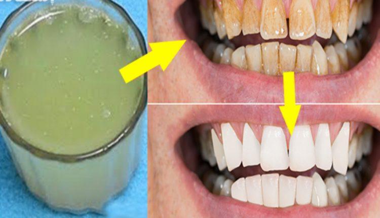 خلطات طبيعية لتبييض الأسنان