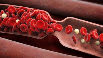 طرق طبيعية لزيادة الهيموجلوبين