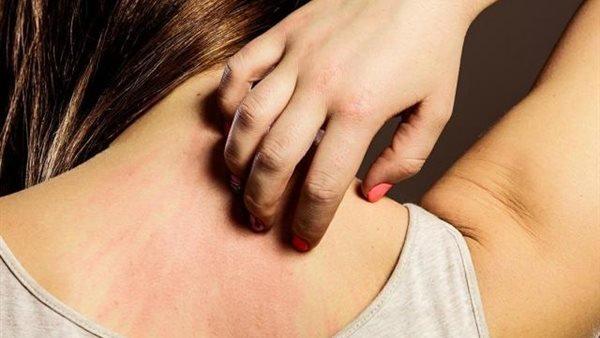 علاج سريع للحساسية والحكة
