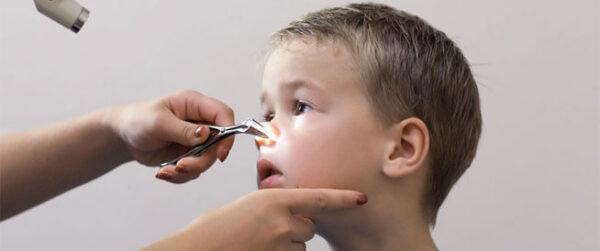 عملية اللحمية للاطفال بالليزر