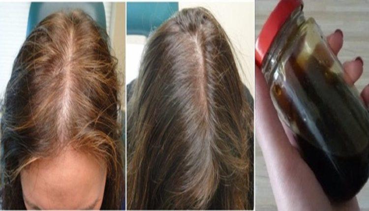 الوصفة المضمونة في تقوية الشعر وانبات الفراغات الأمامية