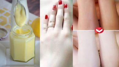 وصفة جبارة من الليمون لتصفية وتفتيح الجسم