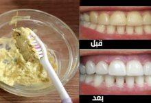وصفة للأسنان ناصعة البياض كاللؤلؤ