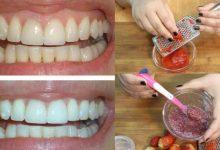وصفة من مواد طبيعية لتبييض الأسنان