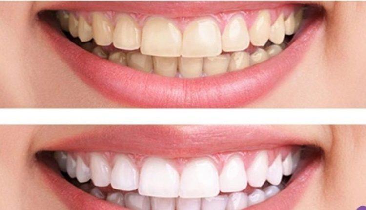 طريقة منزلية للحصول على أسنان ناصعة البياض وفي دقائق معدودة