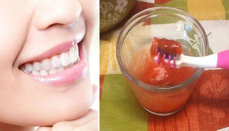 كيف تحصلين على أسنان ناصعة البياض كاللؤلؤ