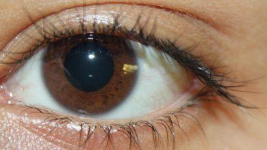 هل اتساع حدقة العين يدل على مرض