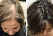 وصفة الزيوت الطبيعية لتقوية الشعر وتكثيفه وعلاج تساقط الشعر في مدة وجيزة