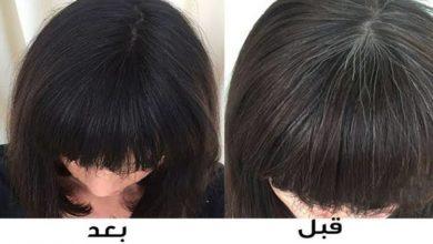 وصفة طبيعية للتخلص من الشعر الأبيض
