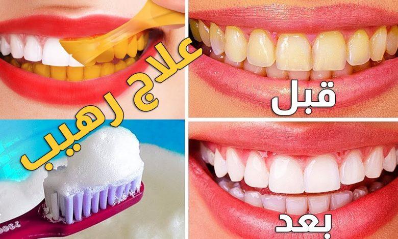 وصفة لتبييض الأسنان وإزالة الرائحة من الفم