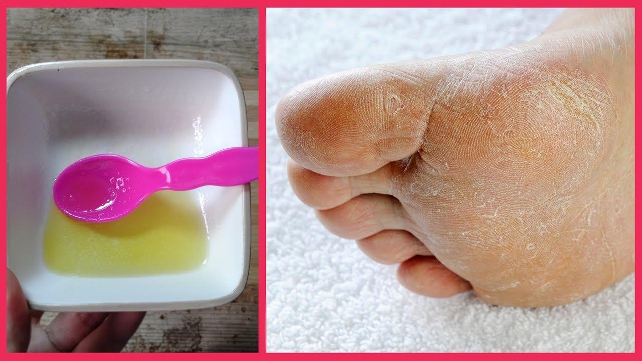 وصفة لترطيب الأقدام وإزالة التشققات