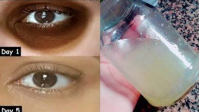 التخلص من الهالات السوداء حول العين في 5 أيام فقط